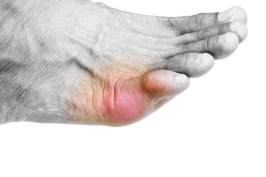 douleur petit doigt de pied