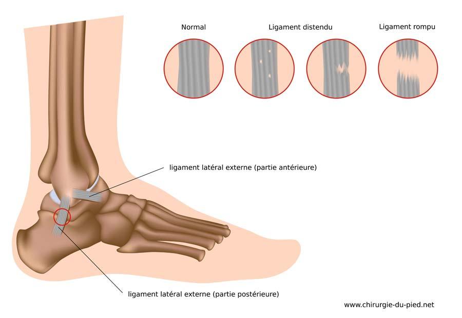 orthesiste du pied