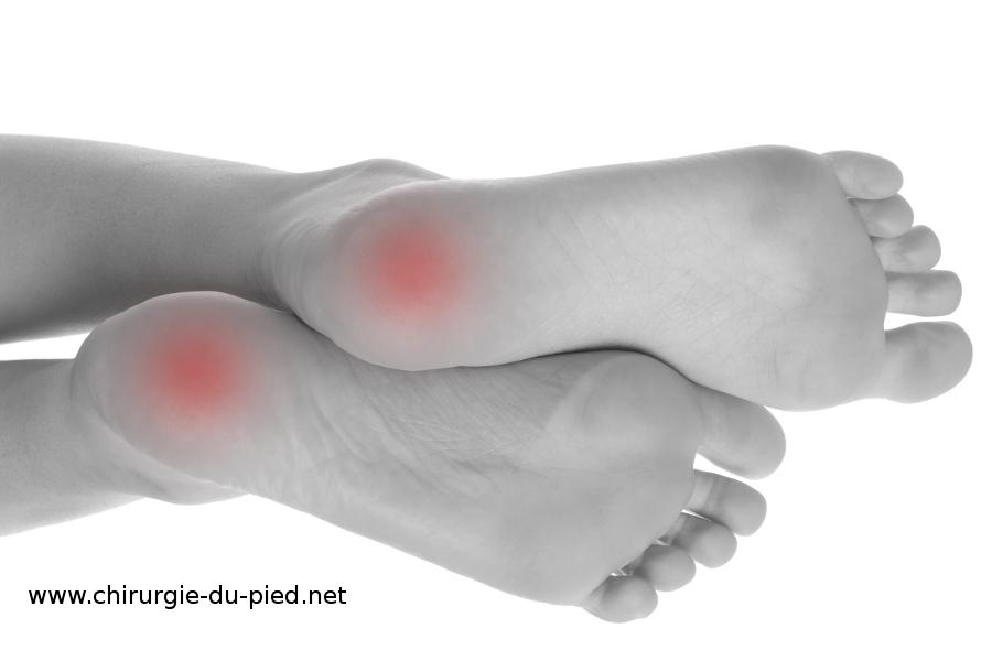 epine du talon du pied